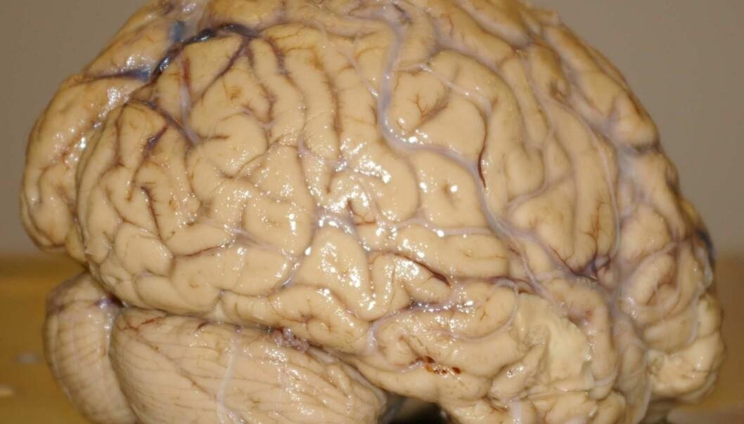 High performers have an astonishing integration of brain functioning (Photo: Bjørnar Kjensli)
