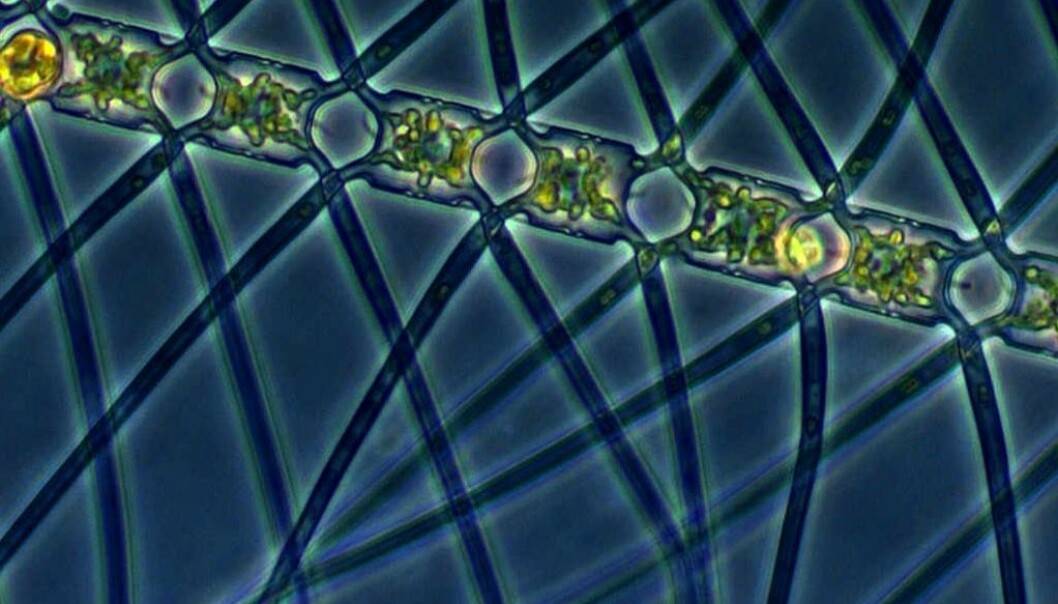 The planktonic alga Chaetoceros atlanticus. (Photo: Marina Montresor, SZN / Alfred Wegener Institute)