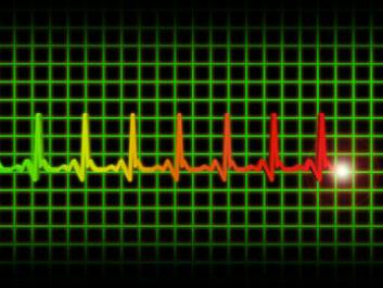 ECG with QT intervals: (Photo: Colourbox)
