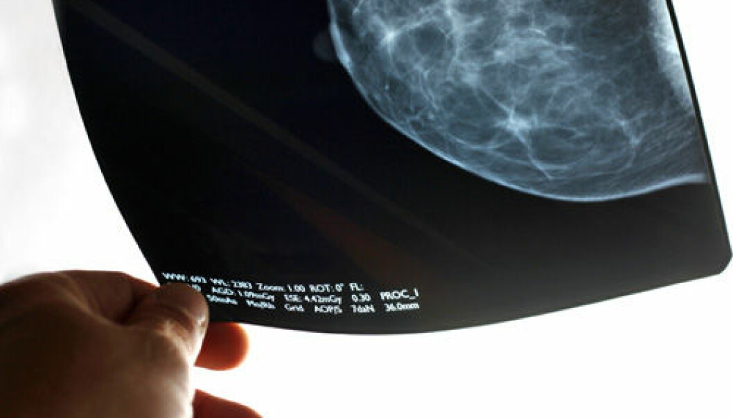 Medical researchers are in disagreement about the effect of extensive mammograms to screen for breast cancer. (Photo: iStockphoto)