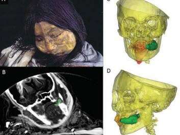 La Donchella's face in a photo, an x-ray and CT scans. The green object is a wad of coca leaf she was chewing at the time of death. Her tongue is shown in red. (Photo: Johan Reinhard)
