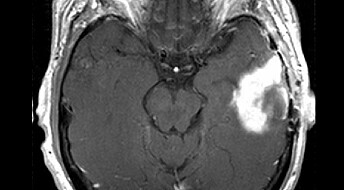 New scans aid brain cancer treatment