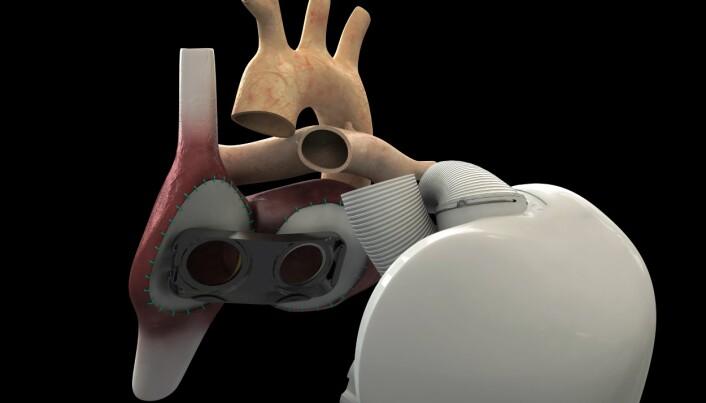 Artificial heart with Norwegian sensor