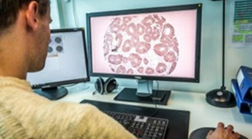 Protein found that can save colon cancer patients