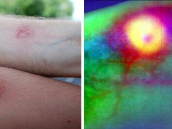 Bruises from being struck. A hyperspectral image taken in an experiment with a paintball leaves no doubt about an injury. (Photos: Lise Randeberg, NTNU)