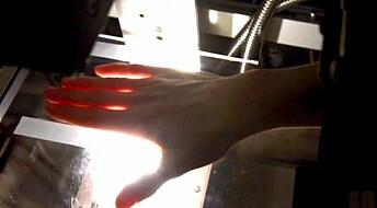 Diagnosing arthritis with a colour scan