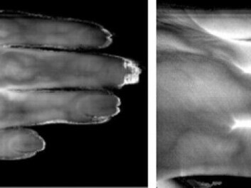 Hyperspectral photos show details in the fingers. (Photo: Lise Randeberg)
