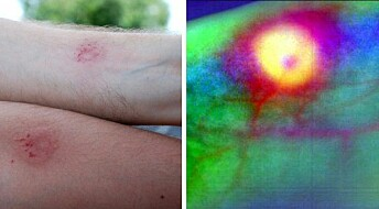 Charting sores and bruises in multiple colours