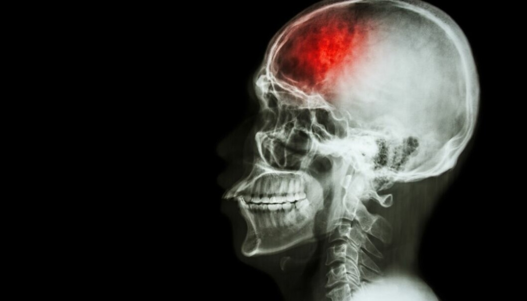 Researchers think that learning more about the FSAP gene can reveal new ways to treat stroke and heart attack. (Photo: Colourbox)
