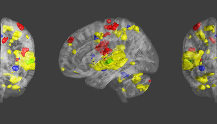 How music touches the brain