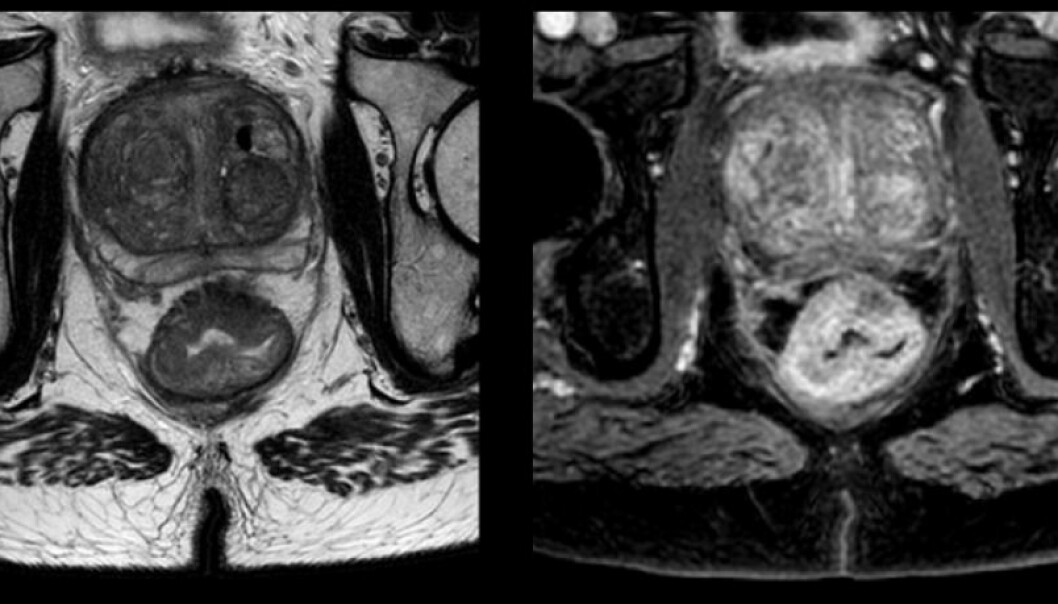"The images above are from a patient in the study with intestinal cancer. At the bottom of the picture we see the two ""buns"" of the patient's behind. The rounded shape right above the crack is a rectal cancer tumour. Researchers hope to improve treatment by ""peering into"" the tumour. (Photo: OxyTarget study)"