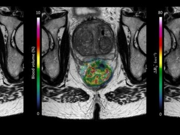 An MRI from a patient in the OxyTarget study who has a large rectal tumour. The picture also shows how the computer model can peek into the tumour, revealing through colours how blood and nutrients flow into the tumour. The work on the model was done by Endre Grøvik and Kathrine Røe Redalen. (Image: OxyTarget (NCT01816607))