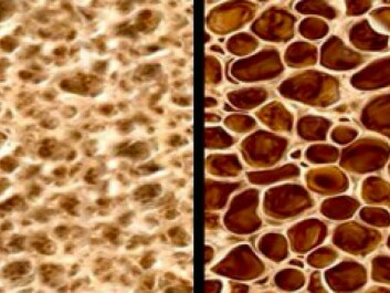 Normal bone tissue on the left and bone with osteoporosis. (Photo: CCM Melbourne)