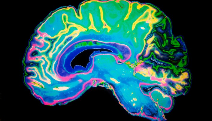 A universal theory of the brain