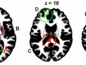 Local differences in white matter are evident between high and low risk-takers as illustrated by the coloured areas adjacent to the prefrontal cortex, within interhemispheric tracts, and in the rear of the brain that controls vision. (Illustration: Sintef)