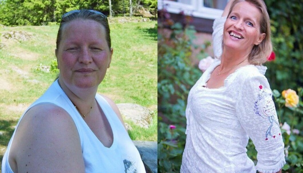 Hege Friberg had an operation to help her lose weight seven years ago. It changed her life, but not quite in the way she had imagined beforehand. (Photo: private)