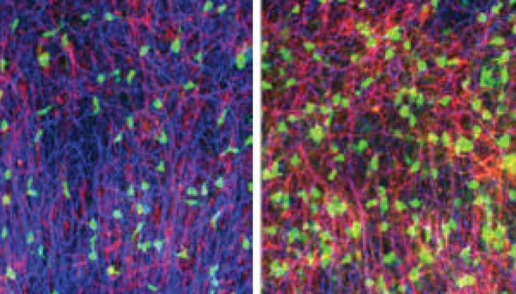 The image to the left shows that brain slices from mouse grown in physiological concentrations og sugar had an unormal small amount of myelin (red-pink colour). The right side image shows that when adding lactic acid the amount of myelin increased to a normal level. (Photo: Johanne E. Rinholm.)