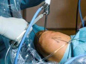 A reduction in the number of arthroscopic procedures for meniscus injuries could lead to substantial savings. (Photo: Øystein Horgmo, UiO)
