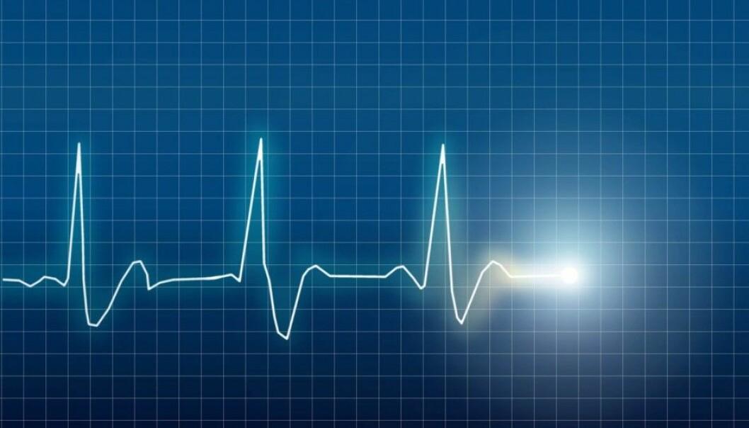 Illustration of an elektrocardiogram (ECG or EKG) of a heart. (Photo: Eskemar / Shutterstock / NTB scanpix)
