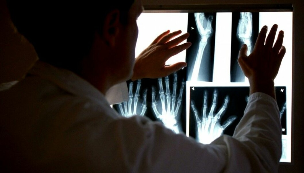 A Norwegian researcher has developed a promising new drug for treating rheumatoid arthritis. It blocks a key sex hormone that seems to have a role in the development of the disease. Above: x-rays of a patient are scrutinized on an illuminator at Diakonhjemmet University College's rheumatism polyclinic in Oslo. (Photo: Aftenposten)