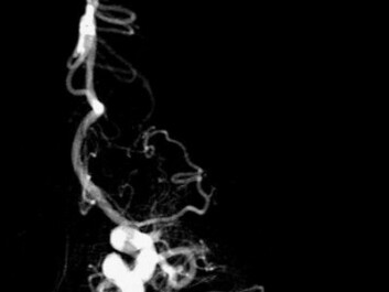 Picture of a blood clot before being fished out. (Photo: UiB)