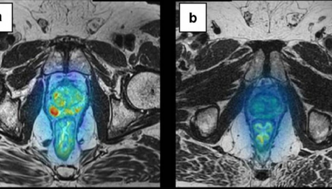 The photo shows malignant prostate tumours prior to treatment (left) and after treatment (right) using a vaccine that stimulated the patient's immune defence. The red areas highlight the cancer tumours and visibly this patient has benefited from the treatment. (Photo: Wolfgang Lilleby/Cancer Immunology, Immunotherapy)