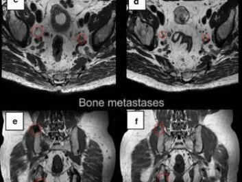 The images of a cancer patient's tumours in lymph node tissue and bone tissue (left)  and six months after treatment with the immune therapy vaccine (right). The red circles show the size of the tumours and it is seen that they have shrunk in the pictures on the right. (Photo: Wolfgang Lilleby/Cancer Immunology, Immunotherapy)