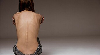 Genetics may explain susceptibility to anorexia