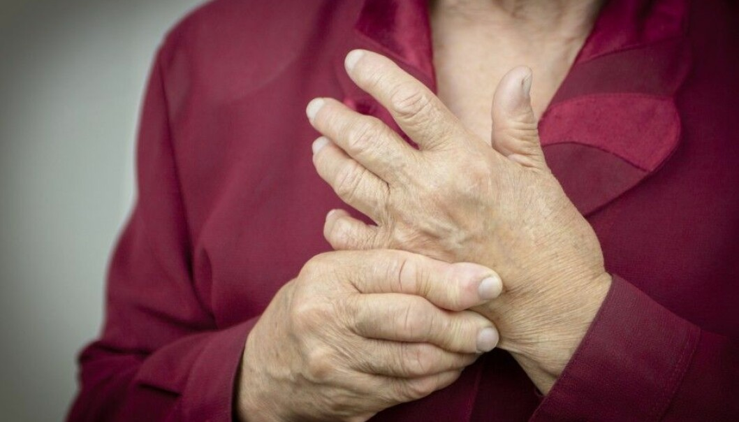 Rheumatoid arthritis is a painful disease that destroys the body's joints. Drugs that inhibit bone and cartilage damage can give patients a better life. (Photo: Shutterstock / NTB scanpix)
