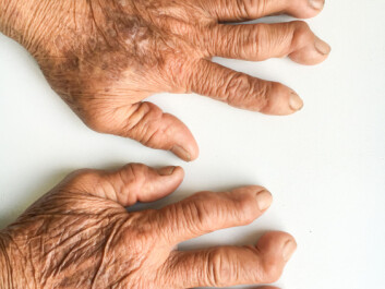 Arthritis can deform both fingers and toes and make it harder to move. (Photo: Shutterstock / NTB scanpix)