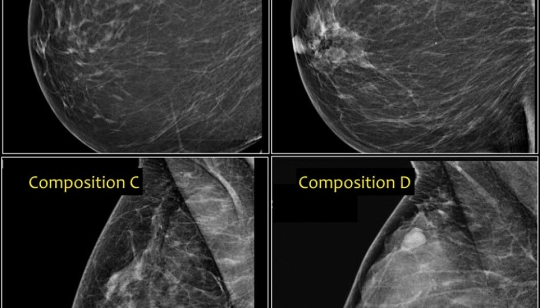 Different breast types affect a woman's risk of developing cancer. From the upper left, a fatty breast that looks dark in the mammography image (A) has a low risk, while breast types B and C have a medium risk. Type D, which has the highest risk, is characterized by having dense tissue comprised of milk glands and connective tissue. The denser the tissue, the greater the percentage of light areas in the image. (Photo: Radiology Assistant)