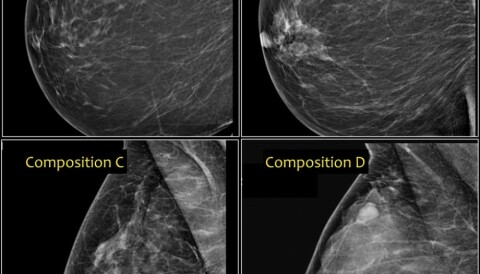 What Mammogram Images Tell Us About Breast Cancer Risk