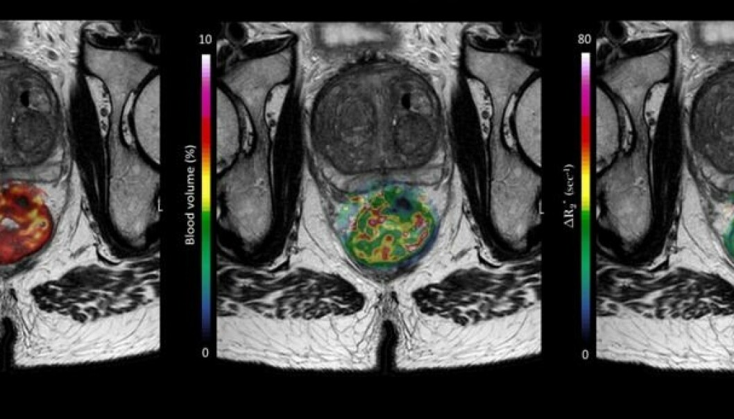In his doctoral thesis, Sebastian Meltzer has identified which patients are more prone to relapsing due to their immune system not activating during cancer treatment. The picture shows a large rectal tumour in a patient who participated in one of the studies. (Picture: OxyTarget (NCT01816607))