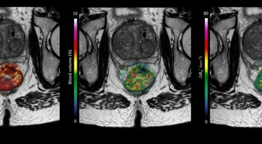 Blood test detects susceptibility to aggressive rectal cancer