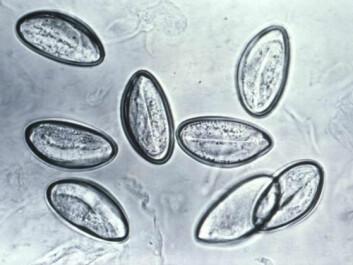 Pinworm eggs (Enterobius vermicularis) through a microscope. (Photo: CDC/Wikimedia Commons)