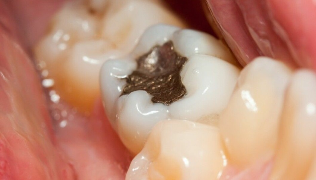 Dentists have used amalgam since at least the 1800s. The discussion as to whether or not the mercury in the amalgam is bad for patients is almost as old. (Illustration photo: Szasz-Fabian Jozsef, Shutterstock/NTB scanpix)