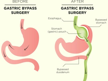 A gastric bypass, also called bariatric surgery, drastically reduces the size of the stomach. The surgeon creates a small pocket at the top of the stomach and connects it to the small intestine. The rest of the stomach is bypassed. The stomach consequently has room for far less food after the procedure. The food that previously passed through the stomach and duodenum now bypasses this part of the digestive tract, according to the NHI.no website. (Illustration: bearsky23 / Shutterstock / NTB scanpix)