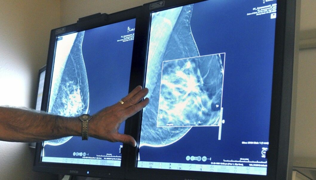 Tomosynthesis displays a 3D image of the breast and can detect more tumours than conventional mammography. But it is not yet clear how many of these newly detected tumours are actually cancerous or whether they pose a risk to women's health. (Photo: Torin Halsey / Times Record News via AP, NTB Scanpix)