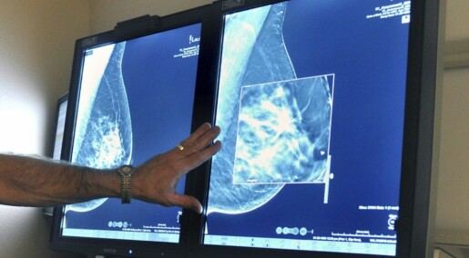 3D mammography can detect more tumours than conventional techniques