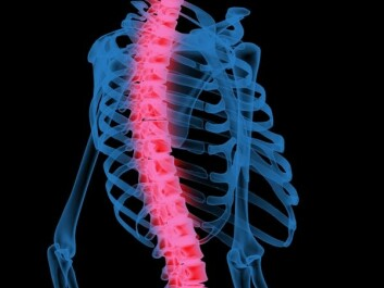 Overweight can put a mechanical load on the spine. (Photo: Colourbox)