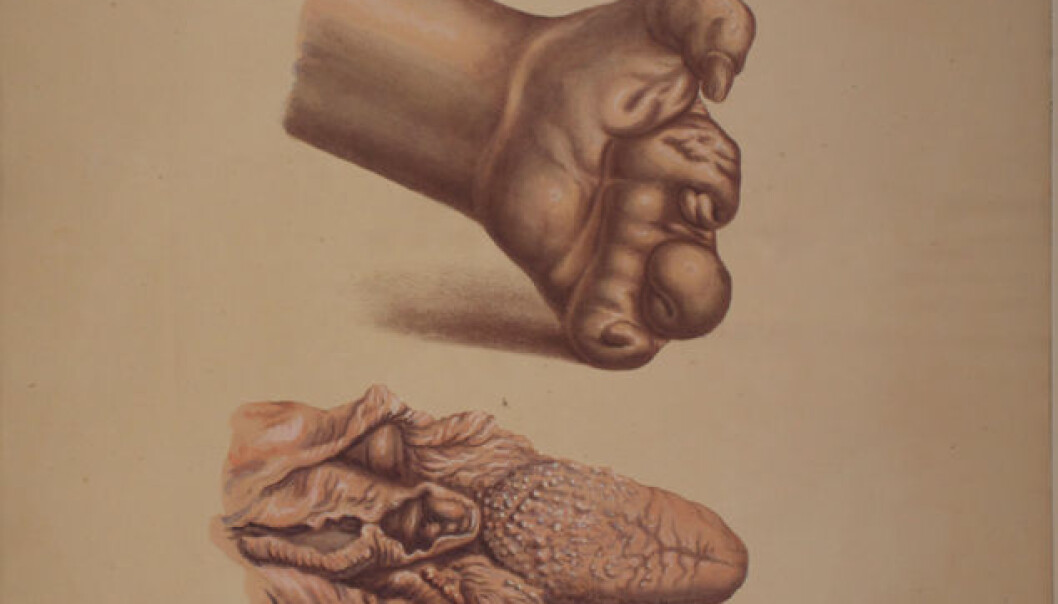"""Illustration from J.L. Losting's Leprosy Atlas. A deformed hand caused by smooth leprosy, whereas the tongue and portion of throat below has been afflicted with elephantiasis or """"knobby"""