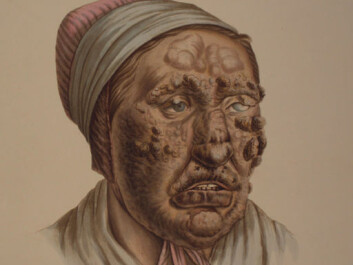 Illustration from J.L. Losting's Leprosy Atlas. A 28 year old woman. (Reprinted courtesy of the Leprosy Museum St. Jørgens Hospital/ the Bergen City Museum)