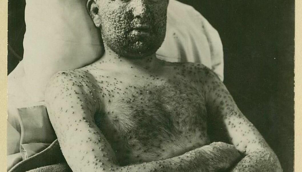 A smallpox patient at Ullevål Hospital, ca. 1900. (Photo: Oslo University Hospital Ullevål)