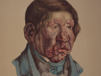 Illustration from J.L. Losting's Leprosy Atlas. A 13 year old boy. He became ill when he was six years old. (Reprinted courtesy of the Leprosy Museum St. Jørgens Hospital/ the Bergen City Museum)