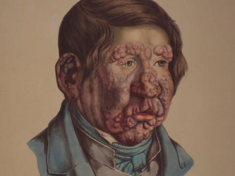 The horrific disease that won't die
