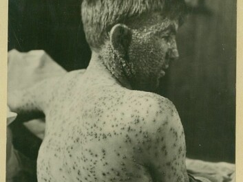 The disease ravaged the young. This boy was a patient at the Ullevål Hospital in the beginning of the 20th Century. (Photo: Oslo University Hospital Ullevål)