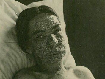 Facial infections, blisters and pustules could render the patient unrecognizable. (Photo: Oslo University Hospital Ullevål)