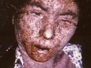 Smallpox left terrible and permanent scars. This is Italian patient was photographed in 1965, just about a decade before the disease was wiped out.  (Photo: CDC/ Carl Flint/Armed Forces Institute of Pathology/Wikimedia Creative Commons)