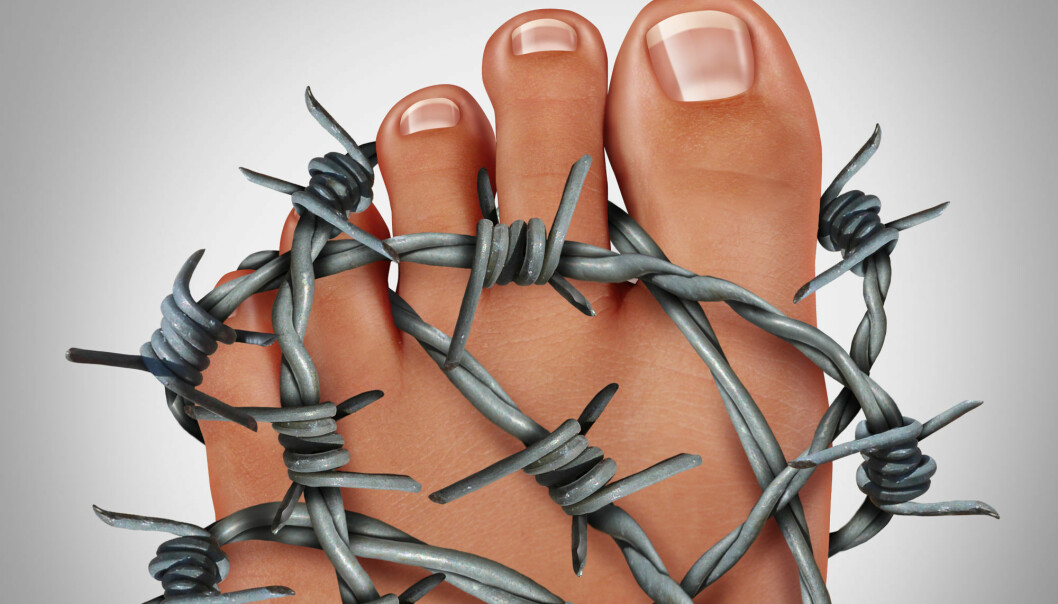 Symptoms of a gout attack are typically manifested in the big toe. It causes extremely painful joints. (Photo: Colourbox)