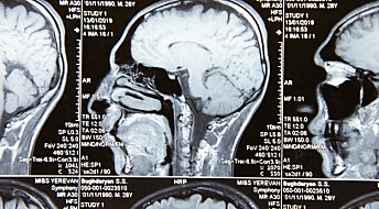 Breathing can affect the cleansing of the brain
